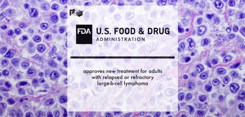 FDA approves new treatment for adults with relapsed or refractory large-b-cell lymphoma | Pharmtech Focus