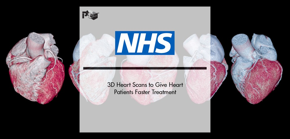 3D Heart Scans on the NHS to Give Heart Patients Faster Treatment | Pharmtech Focus