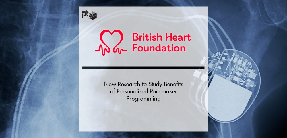 New Research to Study Benefits of Personalised Pacemaker Programming   Pharmtech Focus