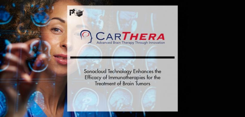 Carthera's Sonocloud Technology Enhances the Efficacy of Immunotherapies for the Treatment of Brain Tumors   Pharmtech Focus