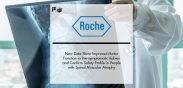 New Roche Data for Evrysdi Show Improved Motor Function in Pre-symptomatic Babies after One Year and Confirm Safety Profile in Previously Treated People with Spinal Muscular Atrophy (SMA) | Pharmtech Focus