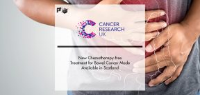 New Chemotherapy-free Treatment for Bowel Cancer Made Available in Scotland | Pharmtech Focus