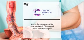 Immunotherapy Approved for Some People with Oesophageal Cancer on NHS in England | Pharmtech Focus