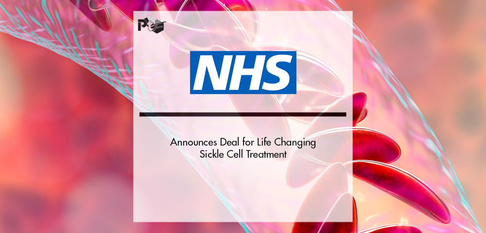 NHS Announces Deal for Life Changing Sickle Cell Treatment | Pharmtech Focus